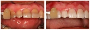 Before and after teeth whitening pictures with Kor Deep Bleaching.