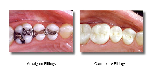 Image left of silver amalgam fillings loaded with mercury. Image right: mercury-free composite fillings