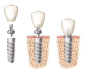 Abutment and crown being placed on dental implants