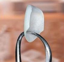porcelain veneer being held up by dental tool