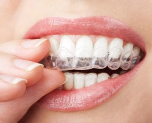 custom-fitted teeth whitening trays