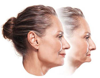 Side-by-side profile photos of a middle-aged woman that show the effects of facial sagging and how dental implants can help; from Dr. Duane Delaune of New Orleans.