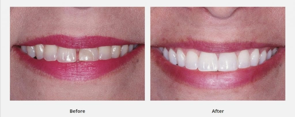 a dental bonding case done by Dr. Delaune with before and after pictures