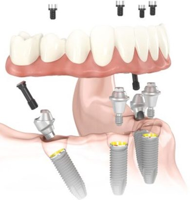 illustration of the position for all-on-4 dental implants