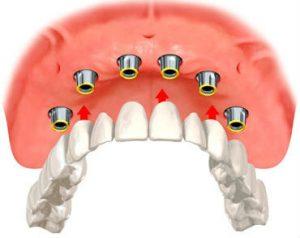 upper implant overdentures