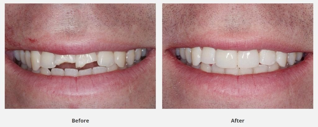 before and after dental bonding for broken teeth