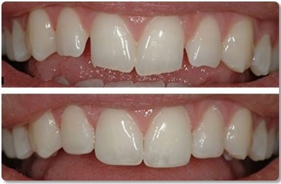 before and after dental contouring and dental bonding