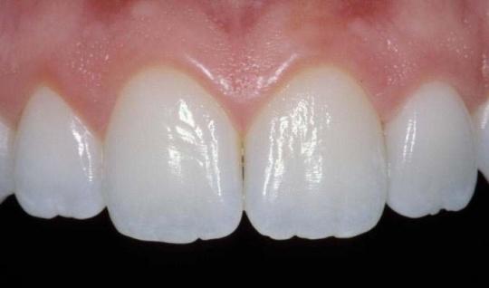 Beautifully textrued teeth