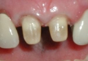 Preparation for a dental crown