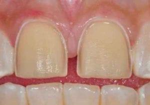 tooth preparation for porcelain veneers.
