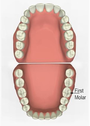 Diagram of eeth with focus on the first molar - for dental implant info from Metaire, LA dentist Dr. Delaune