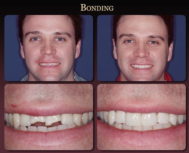 Dental bonding before-and-after pictures from New Orleans cosmetic dentist Dr. Duane Delaune.
