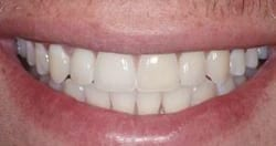 Picture of a smile with New Orleans dental implants from Dr. Delaune of Metairie.