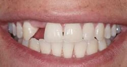 Picture of a patient's smile before receiving New Orleans dental implants from Dr. Delaune of Metairie.