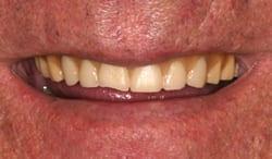 New Orleans dentures before picture from Dr. Duane Delaune