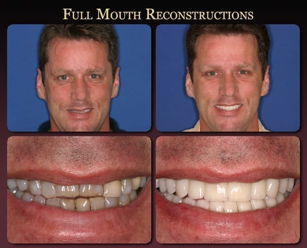 Full mouth reconstruction before-and-after pictures from New Orleans cosmetic dentist Dr. Duane Delaune.