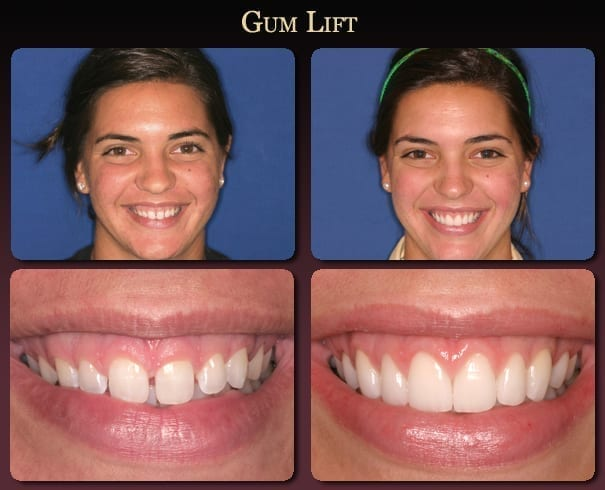 Gum lift before-and-after pictures from New Orleans cosmetic dentist Dr. Duane Delaune.