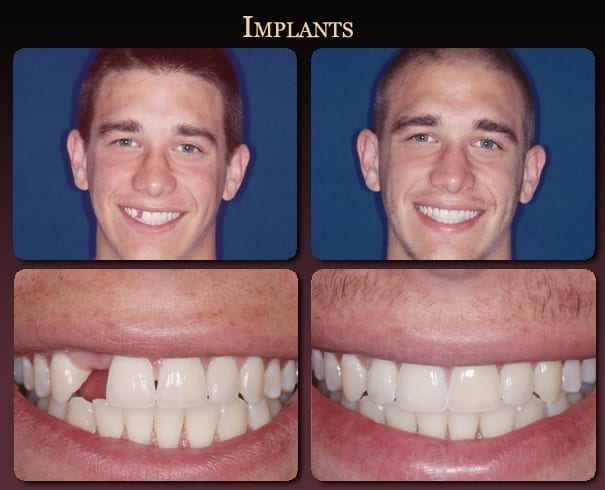 Implants before-and-after pictures from New Orleans cosmetic dentist Dr. Duane Delaune.