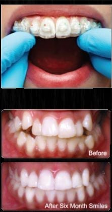 Photo of Six Month Smiles braces, which are available from New Orleans cosmetic dentist Dr. Duane Delaune.