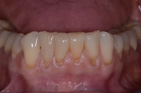 Before photo of New Orleans soft tissue grafting from Dr. Duane Delaune of Metairie.