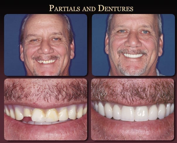 Partials and dentures before-and-after pictures from New Orleans cosmetic dentist Dr. Duane Delaune.