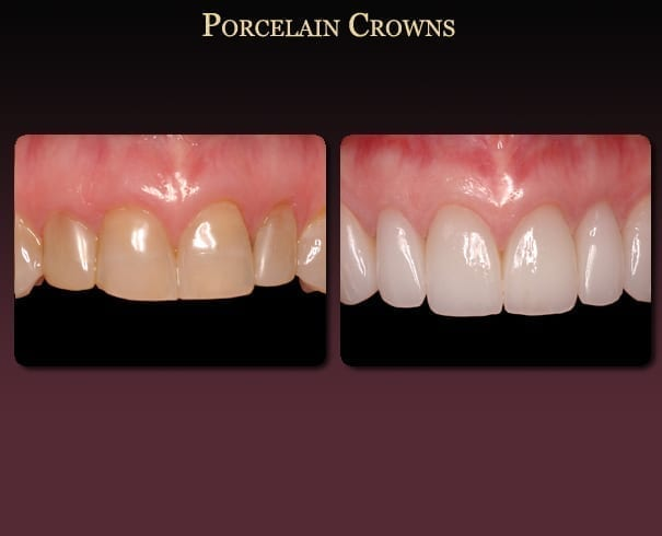 Porcelain crowns before-and-after pictures from New Orleans cosmetic dentist Dr. Duane Delaune.