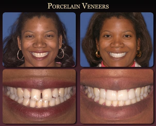 Porcelain veneers before-and-after pictures from New Orleans cosmetic dentist Dr. Duane Delaune.