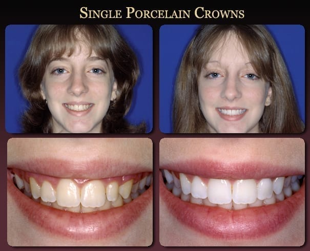 Single porcelain crowns before-and-after pictures from New Orleans cosmetic dentist Dr. Duane Delaune.
