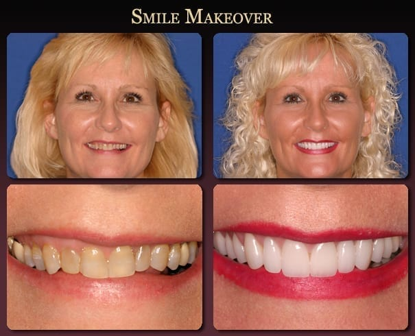 Smile makeover before-and-after pictures from New Orleans cosmetic dentist Dr. Duane Delaune.