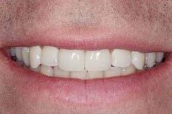 After picture of beautiful New Orleans tooth bonding by Dr. Delaune of Metairie.