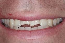 Before picture for New Orleans tooth bonding by Dr. Delaune of Metairie
