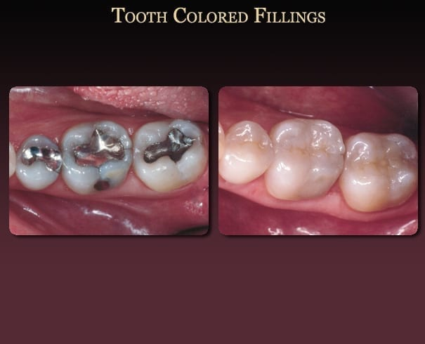 Tooth-colored fillings before-and-after pictures from New Orleans cosmetic dentist Dr. Duane Delaune.