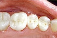 Picture of New Orleans white fillings.