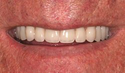 New Orleans dentures after picture from Dr. Duane Delaune