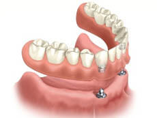 Picture of New Orleans implant dentures that are ball retained.