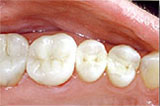 Picture of New Orleans mercury-free fillings after