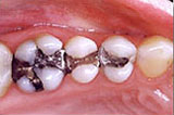 Picture of New Orleans mercury-free fillings before