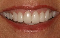Picture of porcelain crowns. In New Orleans, get porcelain crowns from Dr. Delaune.