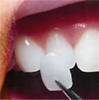 Picture of New Orleans porcelain veneers, which can be obtained from Metairie dentist Dr. Duane Delaune.