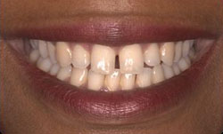Picture of patient's New Orleans tooth gap that was later closed by Dr. Delaune.