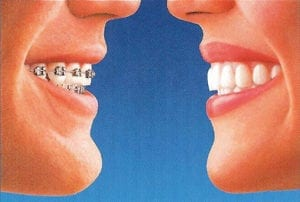 left: traditional braces; right: Invisalgin
