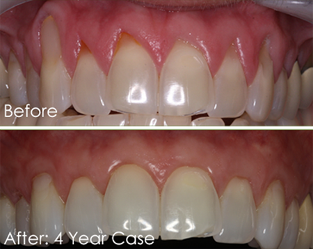 Vertical before-and-after photos of a patient's upper teeth and gums. Receding gums were corrected with the Pinhole Surgical Technique, available in Baton Rouge from Dr. Duane Delaune.