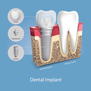 An image of a dental implant next to a tooth